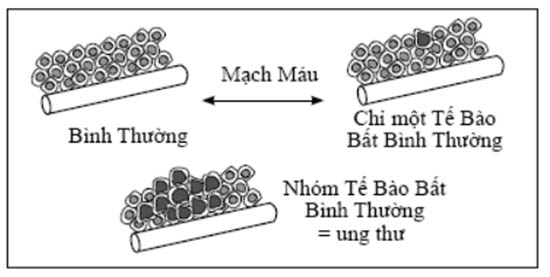 Tuyen tap 2 PGS - Benh ung thu 01